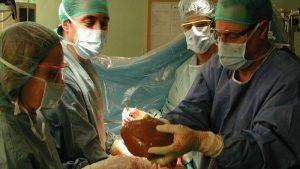 Imagen de uno de los trasplantes hepáticos llevados a cabo este año.